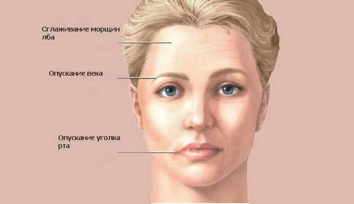 Что делать, если свело челюсть: пошаговая инструкция. Сводит челюсть Сводит рот причины