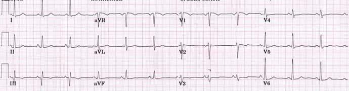 donormilas nuo hipertenzijos)
