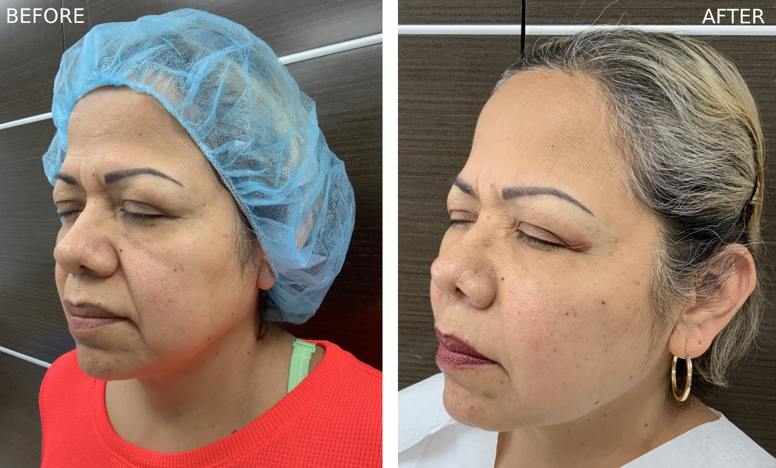 Before & After Botox