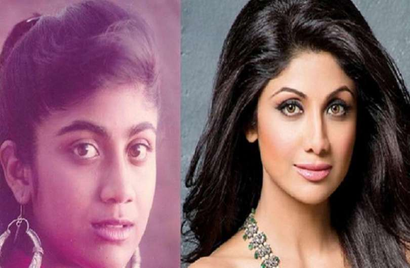 Bollywood These Actresses Who Got Nose Cosmetic Surgery