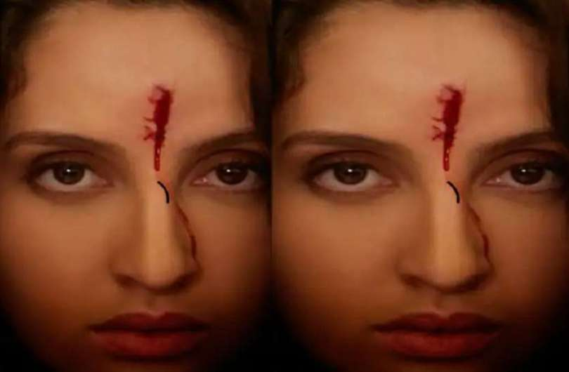 Nora fatehi blood coming out of the forehead what kind of wound did
