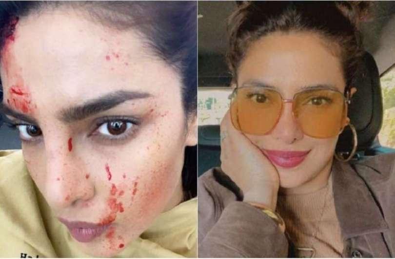 Priyanka Chopra's face covered in blood, photo went viral