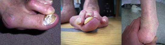 重度の外反母趾