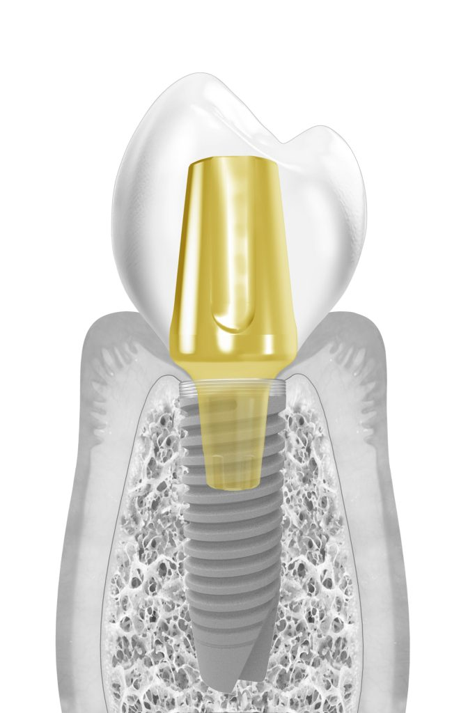 dental prosthesis crown and abutment