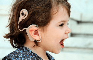 cochlear-implants-300x196