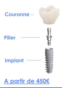 Prix des soins dentaires à l'étranger couronne pilier implant