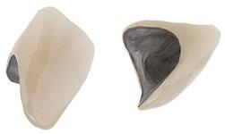 couronne dentaire en métal céramique