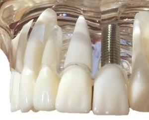 gros plan sur un modèle visuel implant dentaire