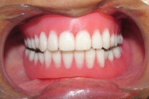 dentier amovible