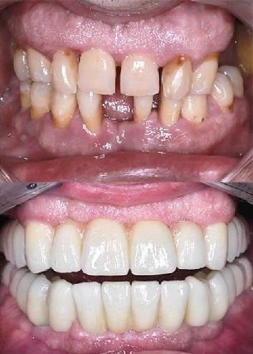 Avant Après Bridges Zircone complet sur implants