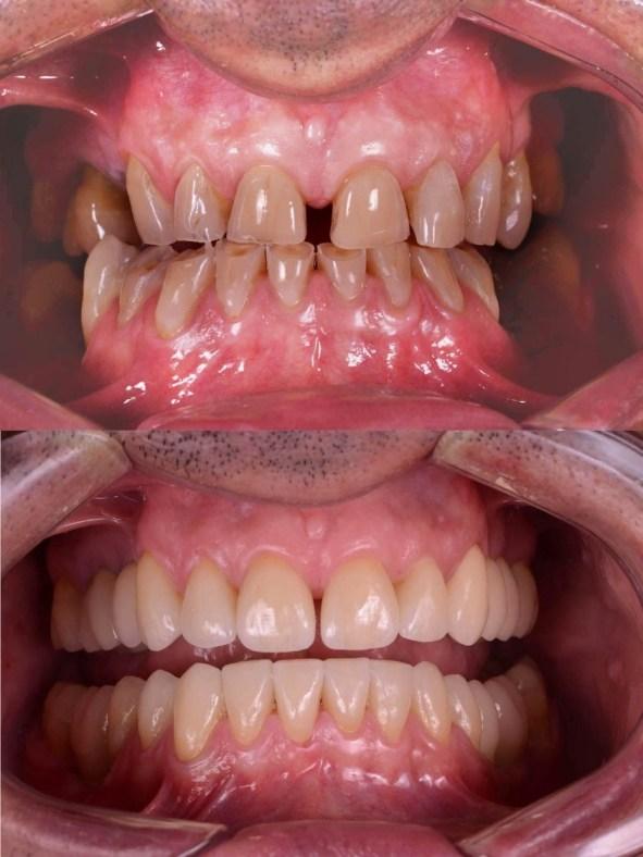 facette dentaire avant après très naturel homme