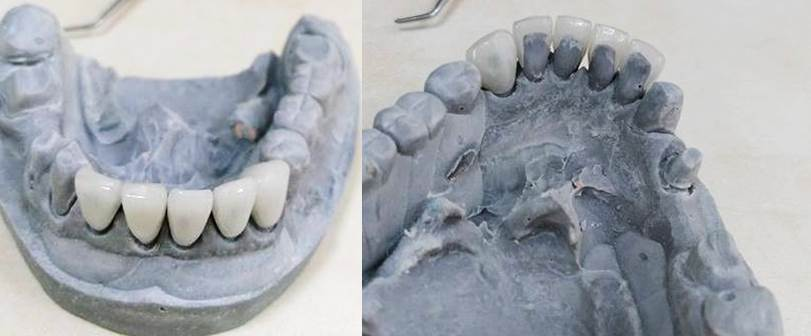 facette dentaire avant pose sur modèle