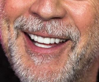 Votre sourire après le soins dentaire en Hongrie