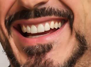 Votre sourire après le soins dentaire en Roumanie