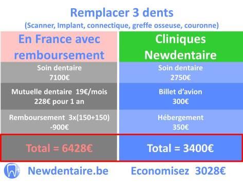 Remboursement implant dentaire France pour 3 dents