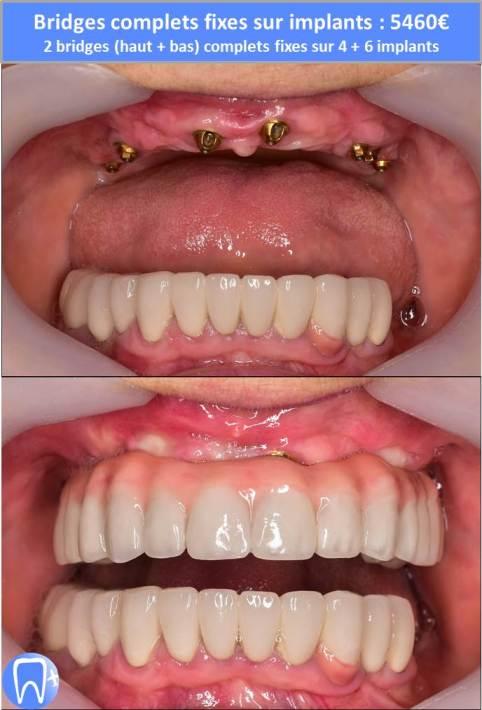 Refaire ses dents avec implants