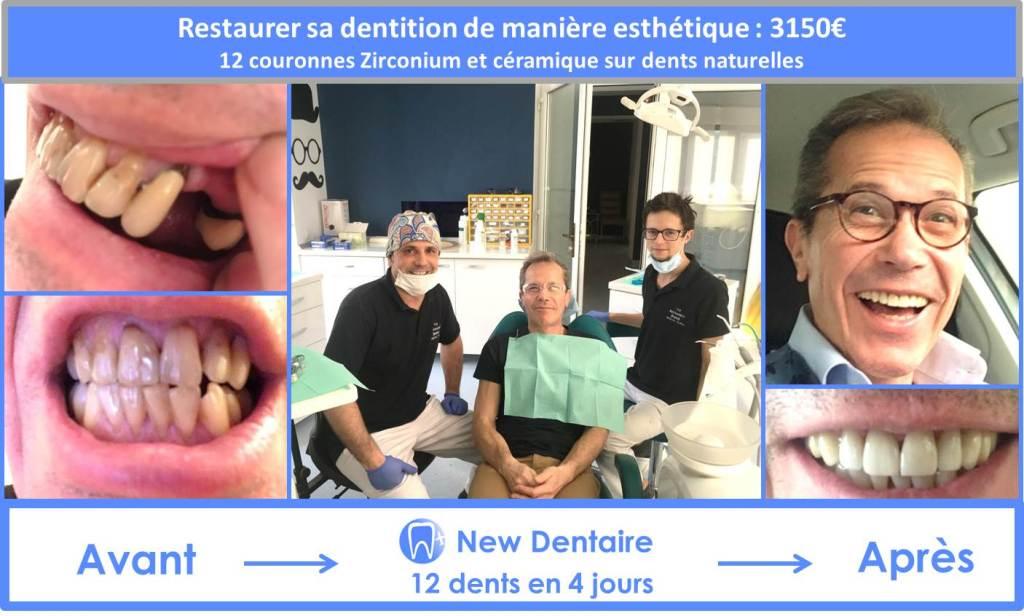 restaurer ses dents avec bridge zirconium