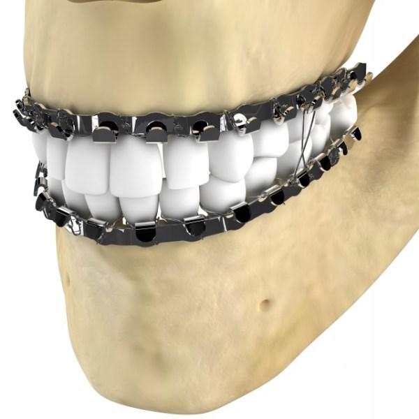 fio-barra-de-erich-dental-newdental-jon-dentaurum