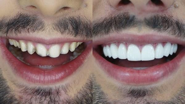 2 lente de contato dental Lente de Contato Dental, O Que É?