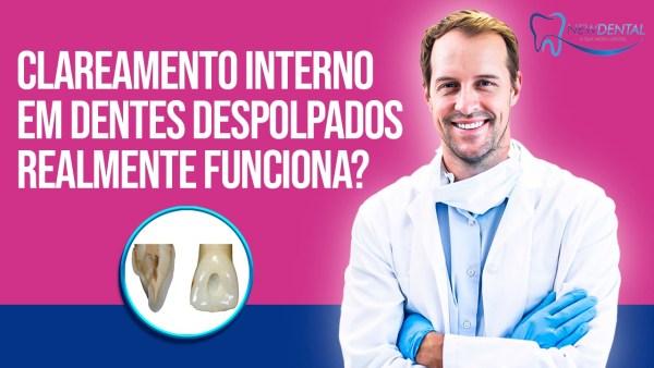 Clareamento-Interno-em-Dentes-Despolpados-Realmente-Funciona