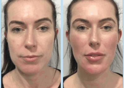 Feminisation Treatments