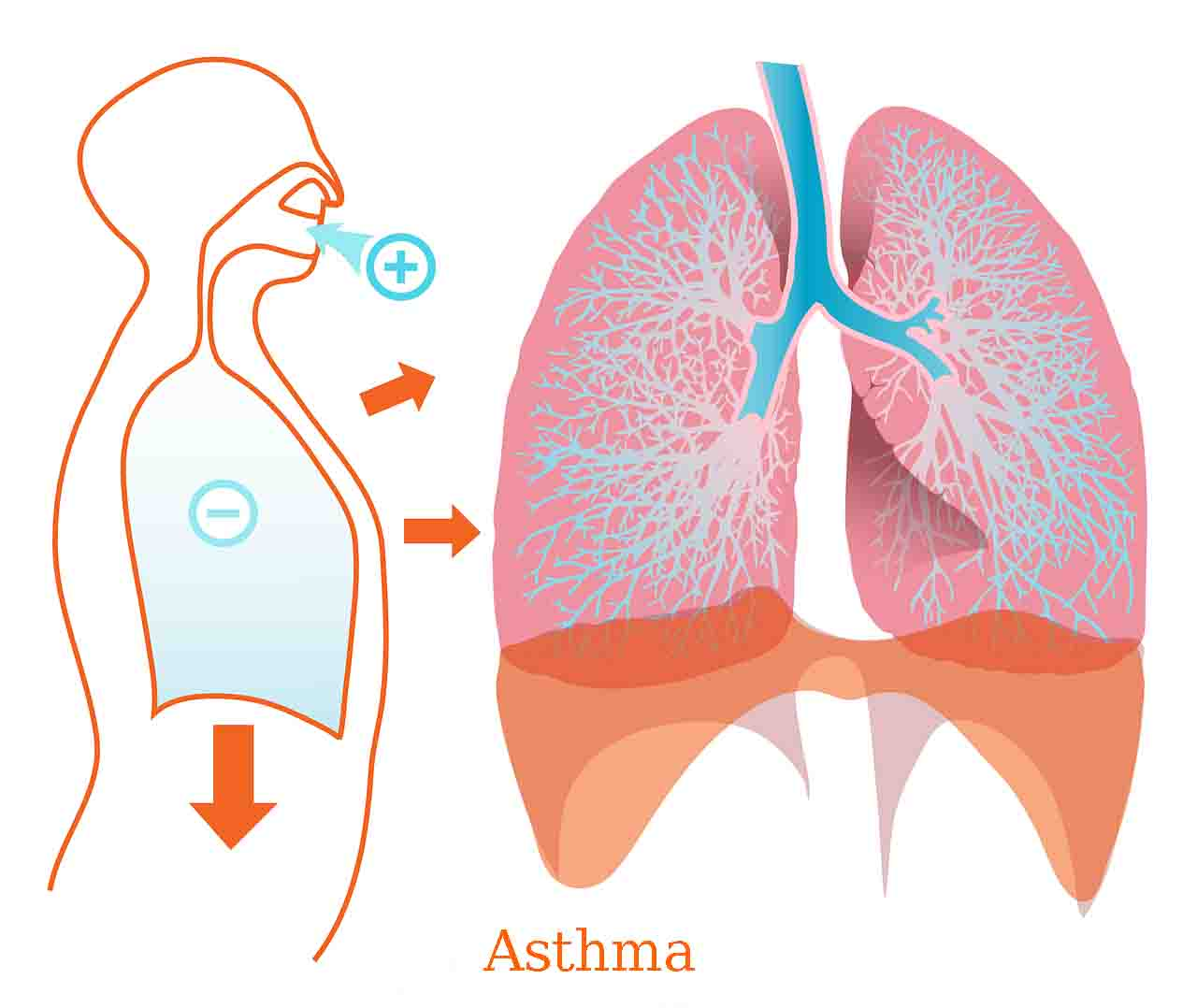 Asthma , Asthma remedies, asthma medications asthma in children, asthma triggers, asthma attack, diagnosis with asthma,best asthma remedies