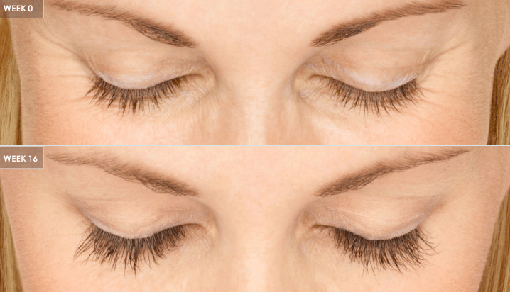 LATISSE Grow Longer Fuller And Darker Lashes By