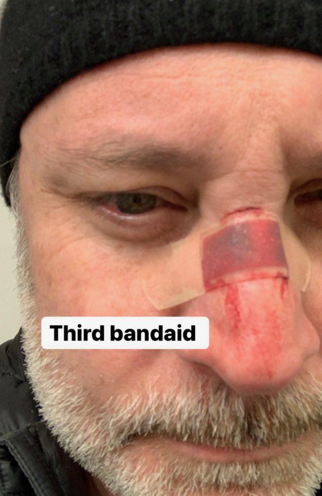 Tristan Pinnock Attack Christian Winthrop nose