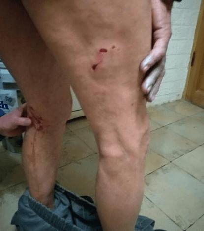 В Ессентуках хозяин натравил бойцовскую собаку на прохожего