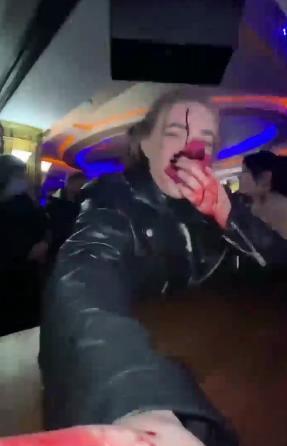 Известную дальневосточную блогершу Олесю Рожкову избили в баре в Приморском крае