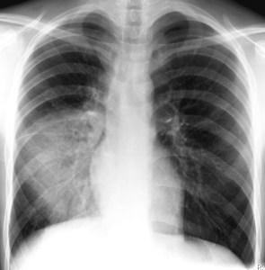 Pneumonie1