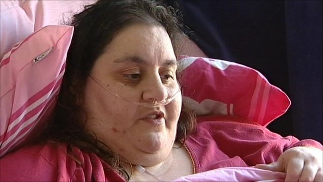 https://i1.wp.com/news.bbcimg.co.uk/media/images/48492000/jpg/_48492029_obese_still.jpg
