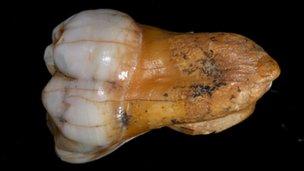 Denisovan tooth