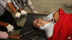 Bomb blast victim: Delhi Sep 7, 2011