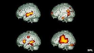 Scans showing brain activity when speaking/listening