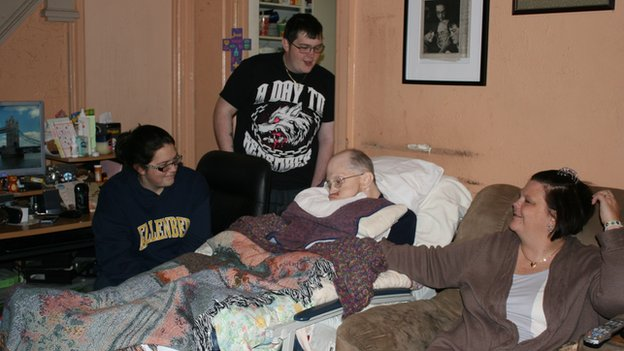 A man with Alzheimer's sleeps on the couch while his family watches