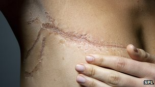 Scarring from breast cancer surgery