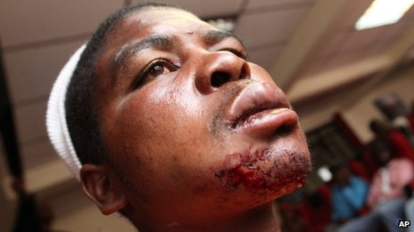Edwin Machokoto, a Movement For Democratic Change activist shows his blood stained injuries after he was allegedly attacked by suspected Zanu pf supporters in the capital Harare, Friday, March, 15, 2013, on the last day of campaigning before a referendum on a new constitution to be held Saturday.