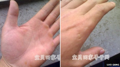 Injury to Luo's hand