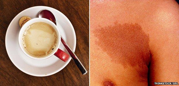 Cafe au lait spots