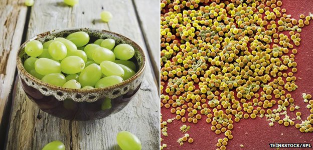 Staphylococcus aureus bacteria can resemble grapes