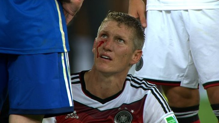 Bastian Schweinsteiger  bleeds from under his eye