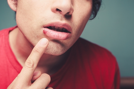 herpes virus on man's lip