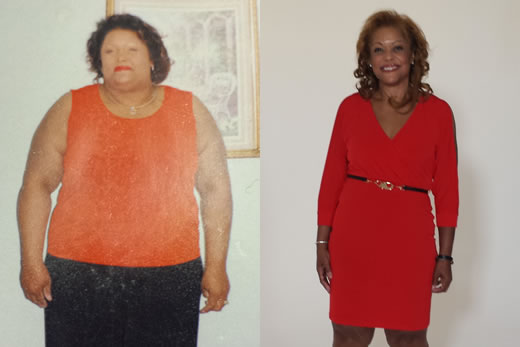 Emory Bariatric Center patient wins national weight loss ...