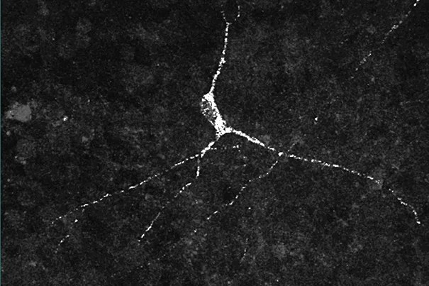 These panels (images 1, 2, 3) show three different types of hypothalamic neurons created from stem cells. For the first time, researchers have access to these live human neuron types that are involved in everything from the regulation of sleep, to obesity, and other basic processes.