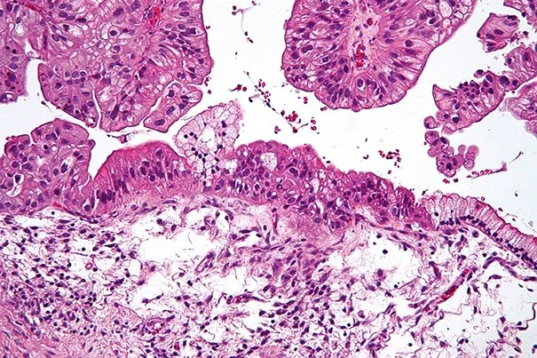 Researchers have found a gene therapy that delivers a protein which suppresses the development of female reproductive organs. This new treatment could improve the survival of patients with ovarian cancer that has recurred after chemotherapy.