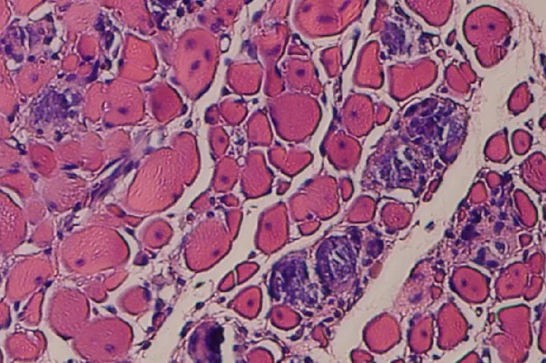 Developed by a multi-disciplinary team of Wyss Institute and Harvard SEAS faculty and researchers, the application of cylic mechanical stimulation of the injured tissue resulted in two-and-a-half-fold improvement in muscle regeneration, reduced tissue scarring and fibrosis, and a visible increase in the density of muscle cells. Credit: Wyss Institute at Harvard University