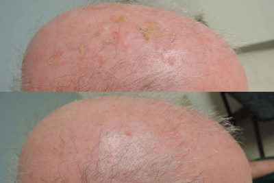 Actinic keratosis lesions (top image), the yellowish patches, were treated with a combination of calcipotriol plus fluorouracil. Within eight weeks they had largely disappeared (below).