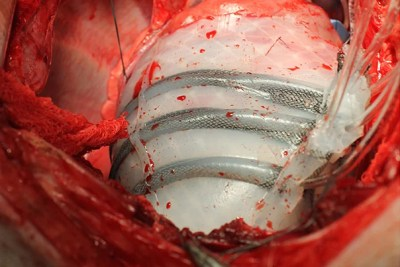 The soft robotic sleeve twists and compresses in synch with a beating heart, augmenting cardiovascular functions weakened by heart failure. Unlike currently available devices that assist heart function, Harvard's soft robotic sleeve does not directly contact blood.