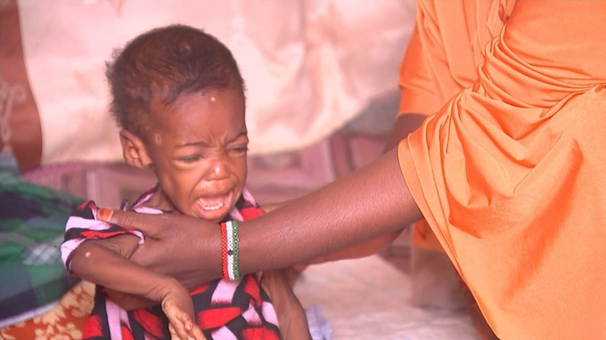 One-year-old Sameera is one of the youngest to contract cholera.